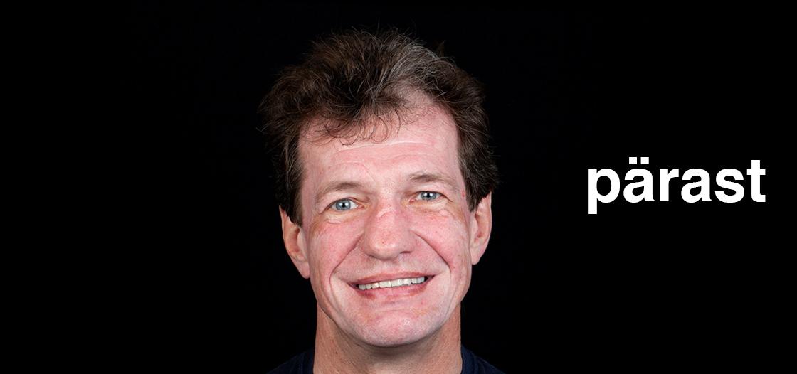 Meerhof Dental Center Case 2 – Implantatsioon. Kompleksne naeratuse taastamine - https://meerhofdk.ee/case-2-implantatsioon-kompleksne-naeratuse-taastamine/